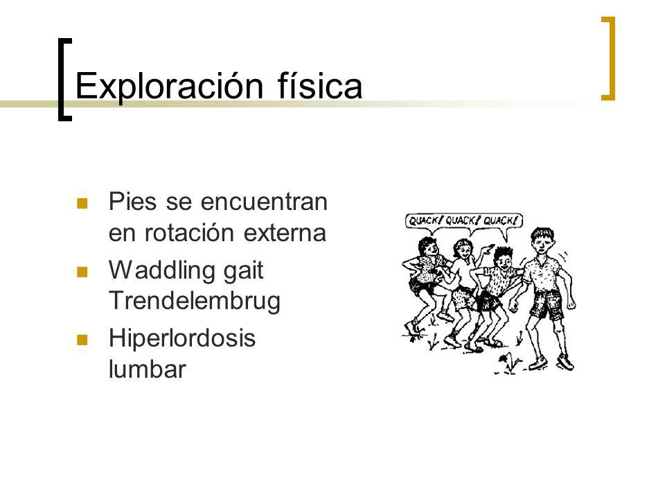 Exploración física Pies se encuentran en rotación externa