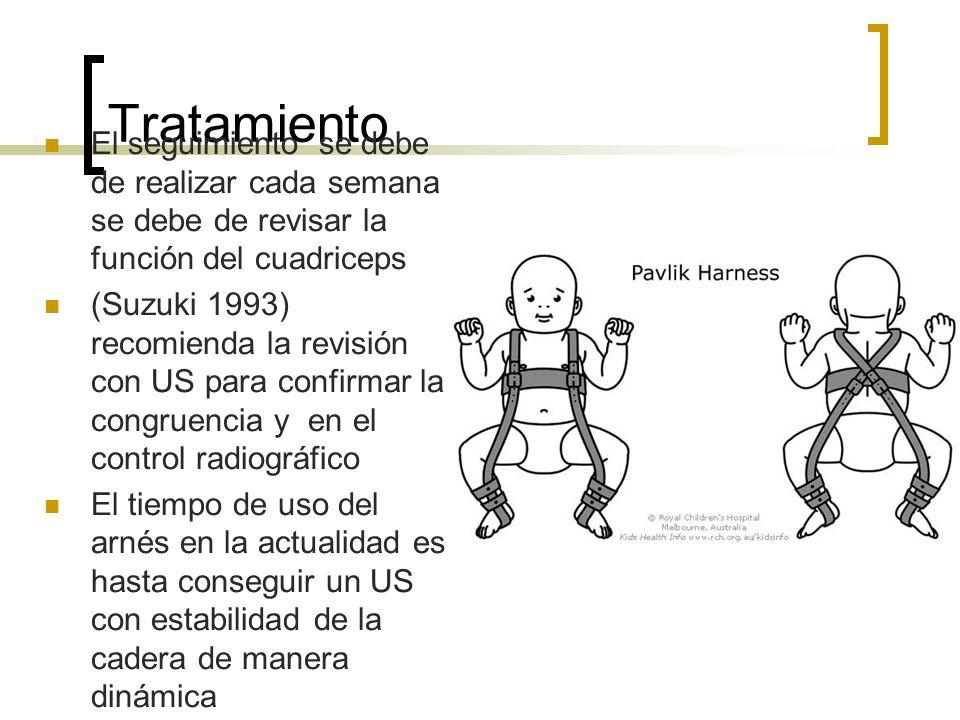 Tratamiento El seguimiento se debe de realizar cada semana se debe de revisar la función del cuadriceps.