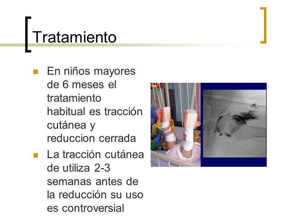 Tratamiento En niños mayores de 6 meses el tratamiento habitual es tracción cutánea y reduccion cerrada.