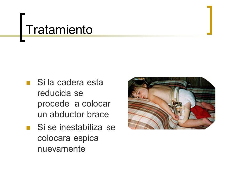 TratamientoSi la cadera esta reducida se procede a colocar un abductor brace.