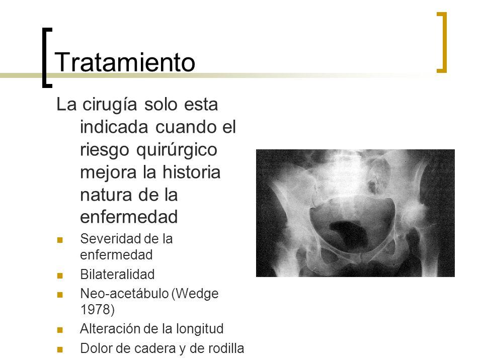 TratamientoLa cirugía solo esta indicada cuando el riesgo quirúrgico mejora la historia natura de la enfermedad.