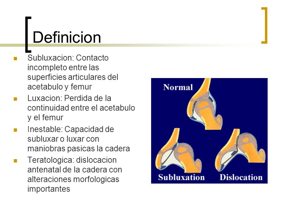 Definicion Subluxacion: Contacto incompleto entre las superficies articulares del acetabulo y femur.