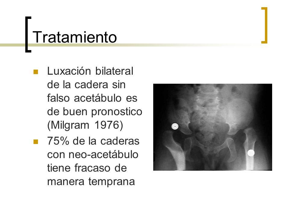 Tratamiento Luxación bilateral de la cadera sin falso acetábulo es de buen pronostico (Milgram 1976)