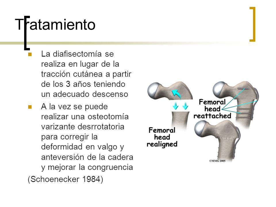 TratamientoLa diafisectomía se realiza en lugar de la tracción cutánea a partir de los 3 años teniendo un adecuado descenso.