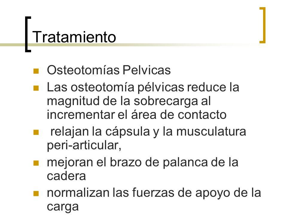 Tratamiento Osteotomías Pelvicas