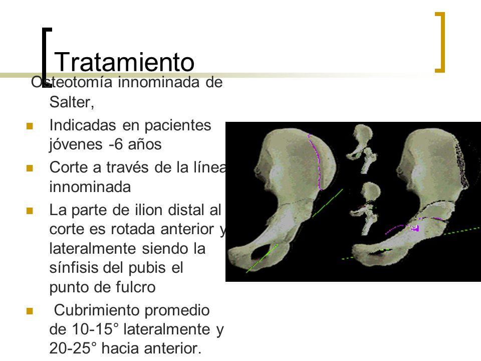 Tratamiento Osteotomía innominada de Salter,