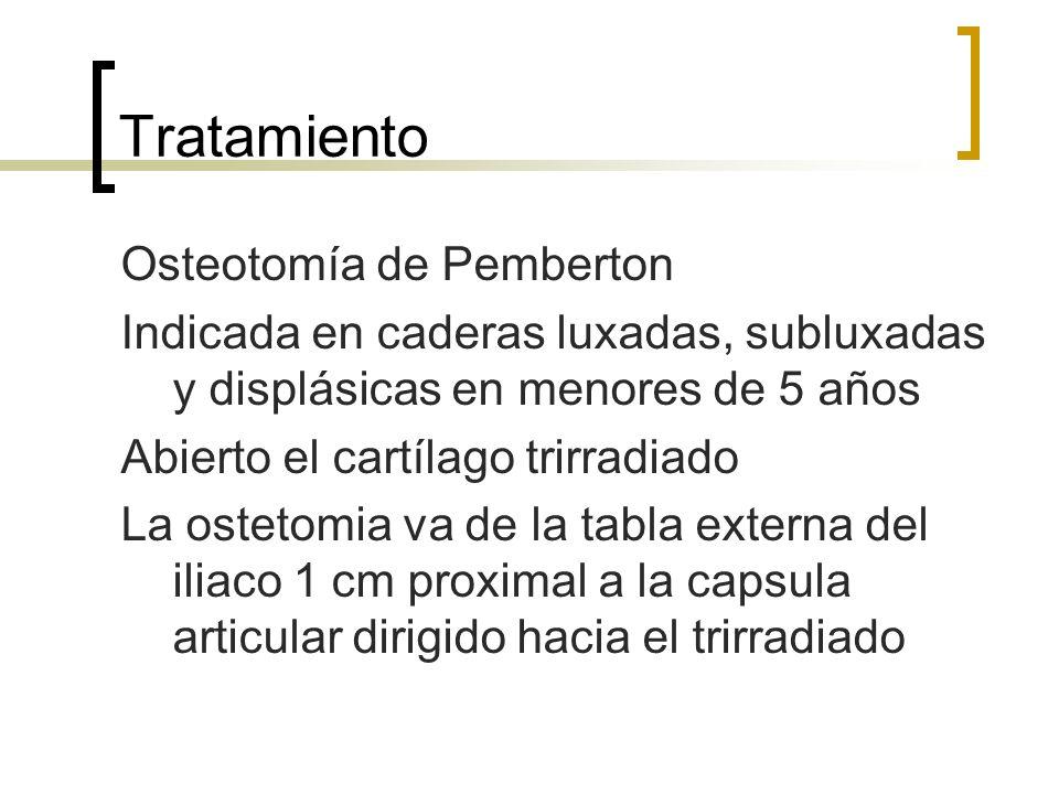 Tratamiento Osteotomía de Pemberton