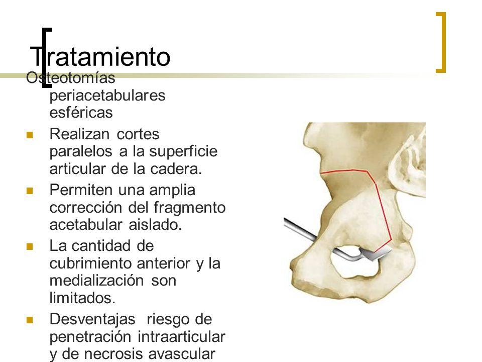 Tratamiento Osteotomías periacetabulares esféricas
