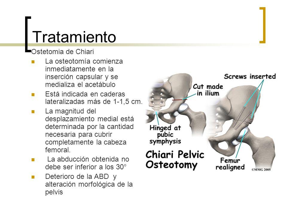 Tratamiento Ostetomia de Chiari