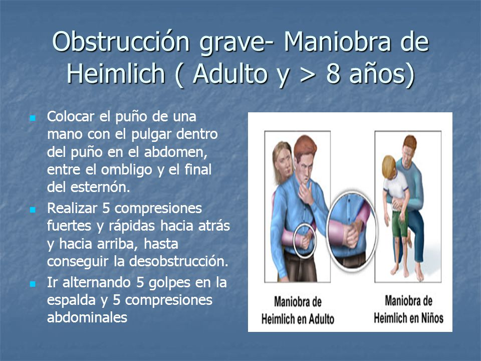 Obstrucción grave- Maniobra de Heimlich ( Adulto y > 8 años)