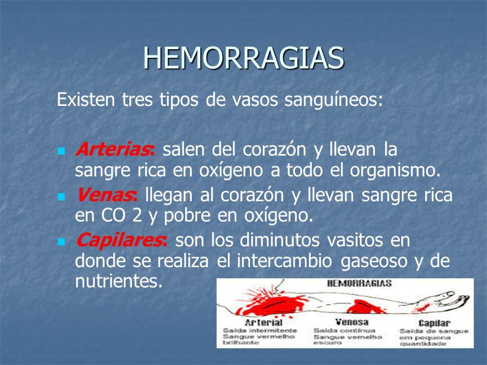 HEMORRAGIAS Existen tres tipos de vasos sanguíneos: