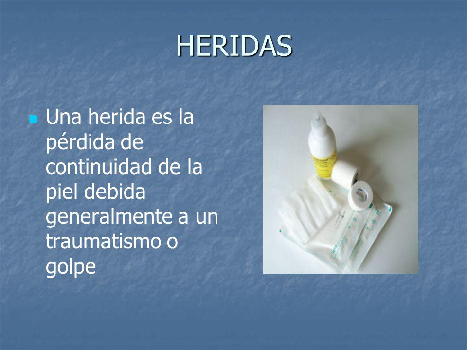 HERIDAS Una herida es la pérdida de continuidad de la piel debida generalmente a un traumatismo o golpe.