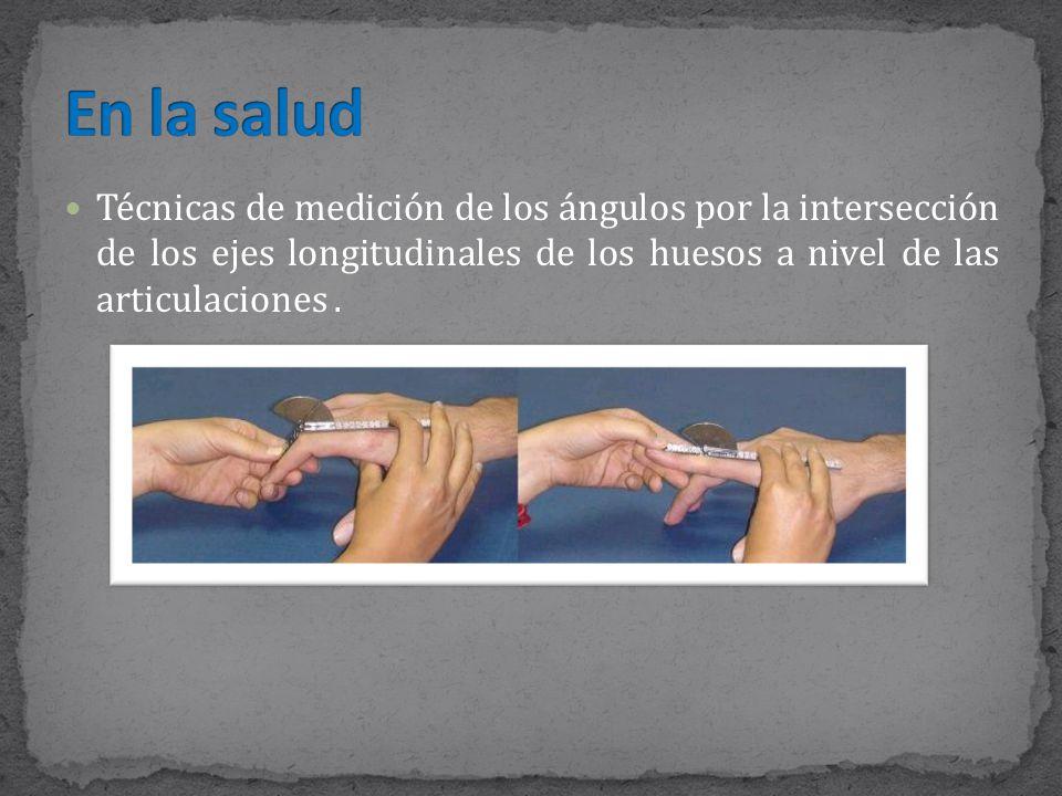 En la salud Técnicas de medición de los ángulos por la intersección de los ejes longitudinales de los huesos a nivel de las articulaciones .