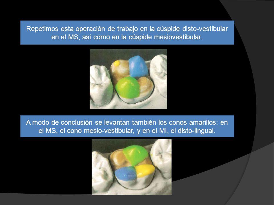 Repetimos esta operación de trabajo en la cúspide disto-vestibular en el MS, así como en la cúspide mesiovestibular.