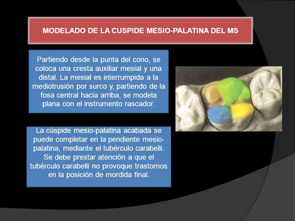 MODELADO DE LA CUSPIDE MESIO-PALATINA DEL MS