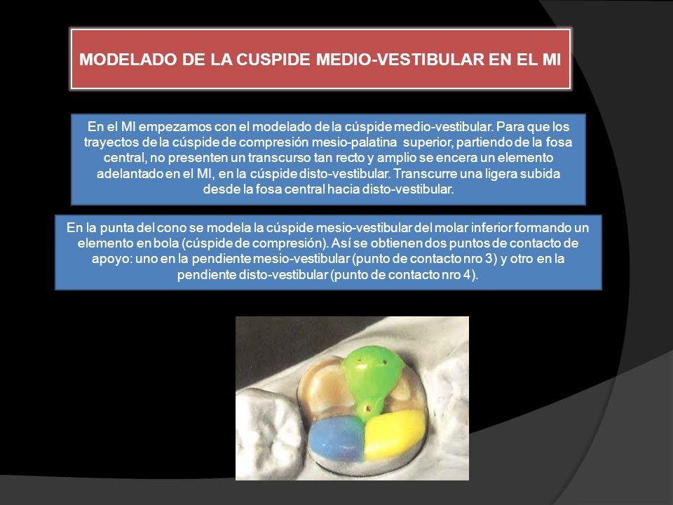 MODELADO DE LA CUSPIDE MEDIO-VESTIBULAR EN EL MI