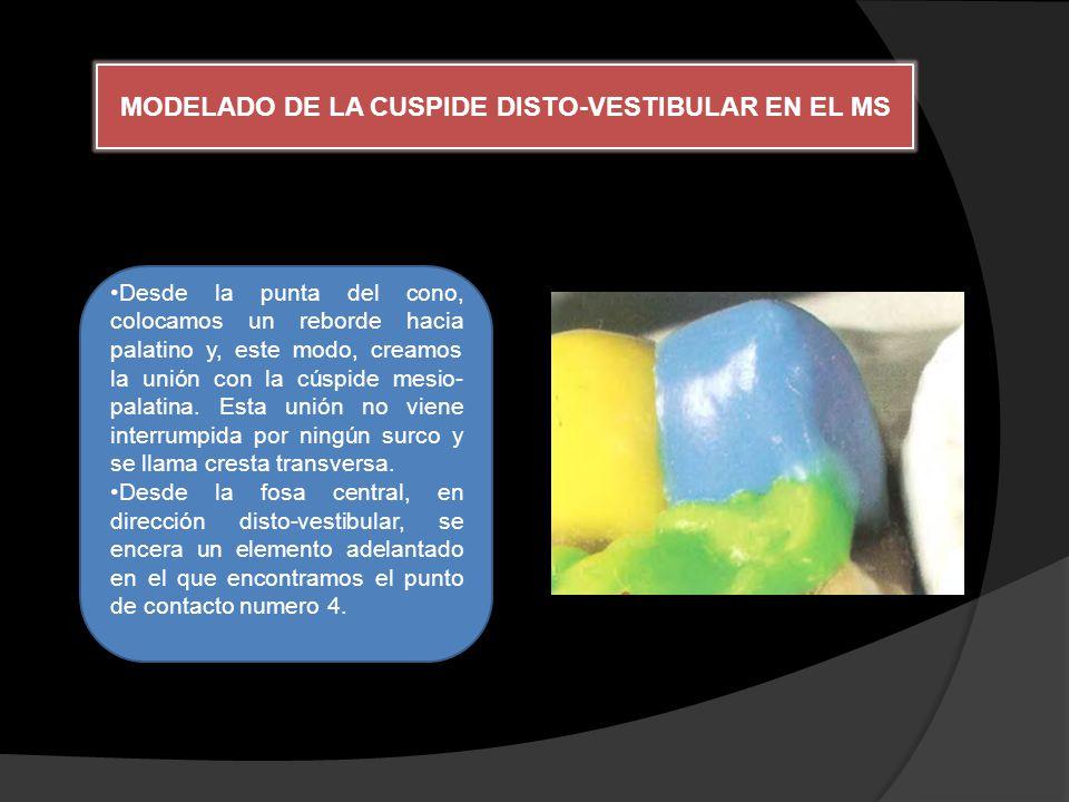 MODELADO DE LA CUSPIDE DISTO-VESTIBULAR EN EL MS