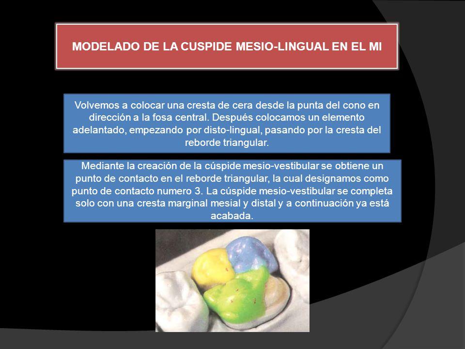 MODELADO DE LA CUSPIDE MESIO-LINGUAL EN EL MI