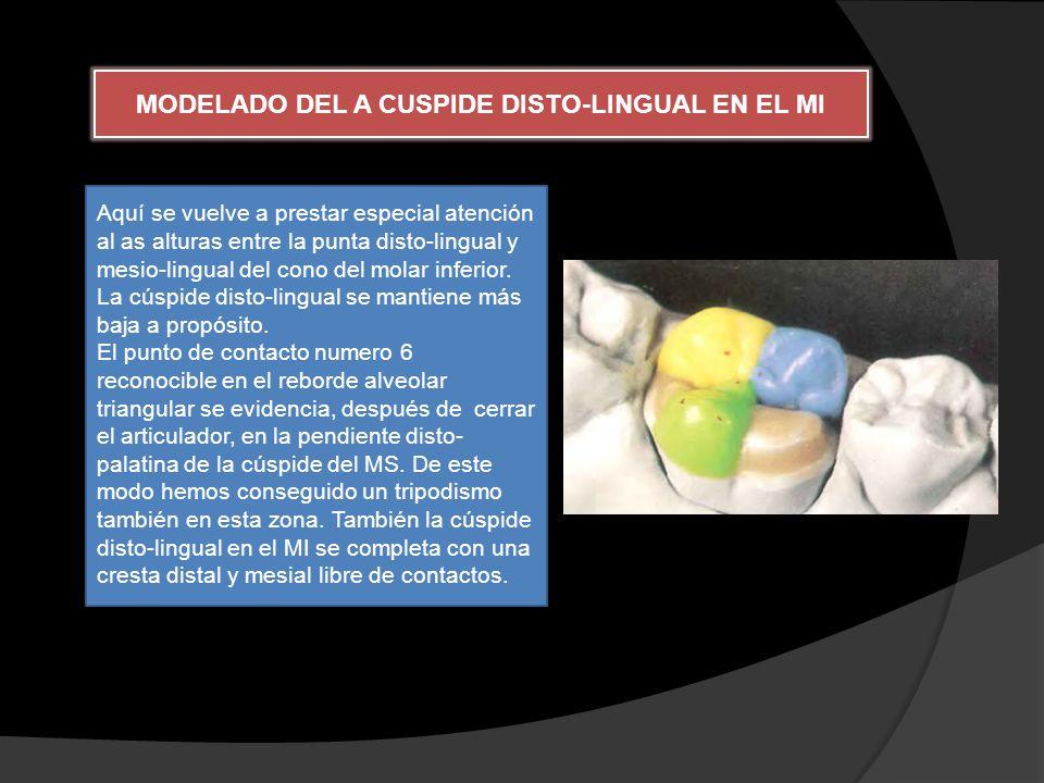 MODELADO DEL A CUSPIDE DISTO-LINGUAL EN EL MI