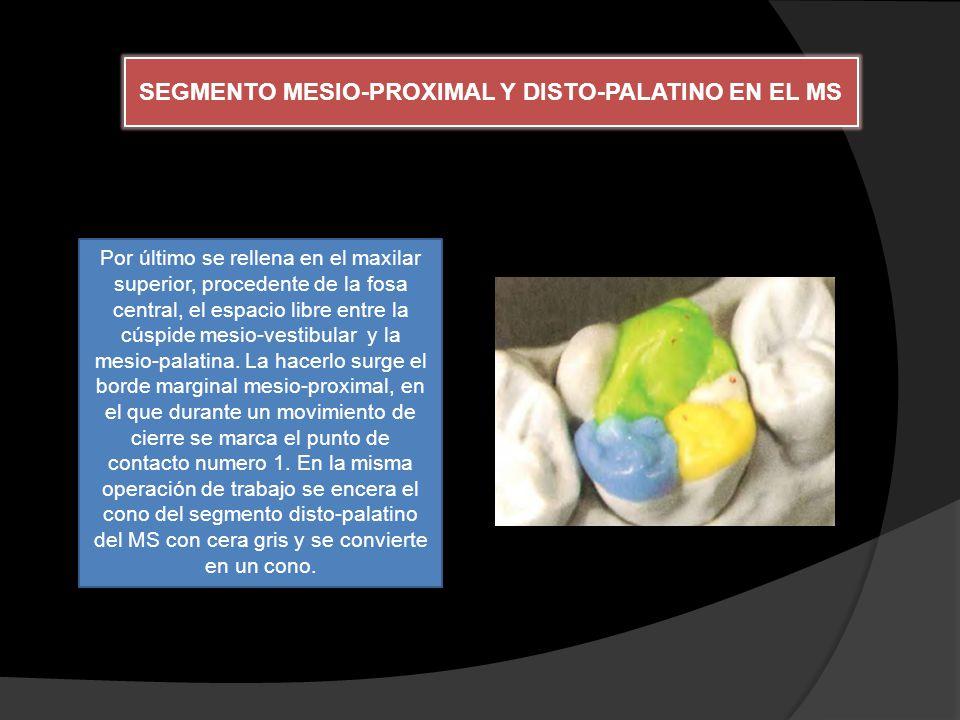 SEGMENTO MESIO-PROXIMAL Y DISTO-PALATINO EN EL MS