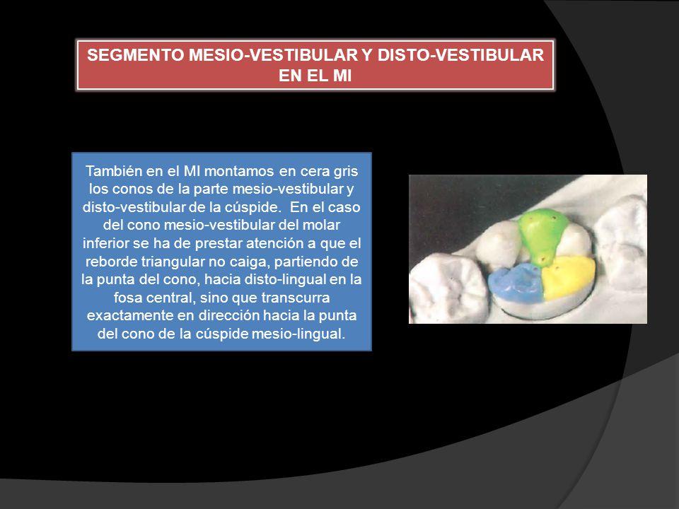SEGMENTO MESIO-VESTIBULAR Y DISTO-VESTIBULAR EN EL MI