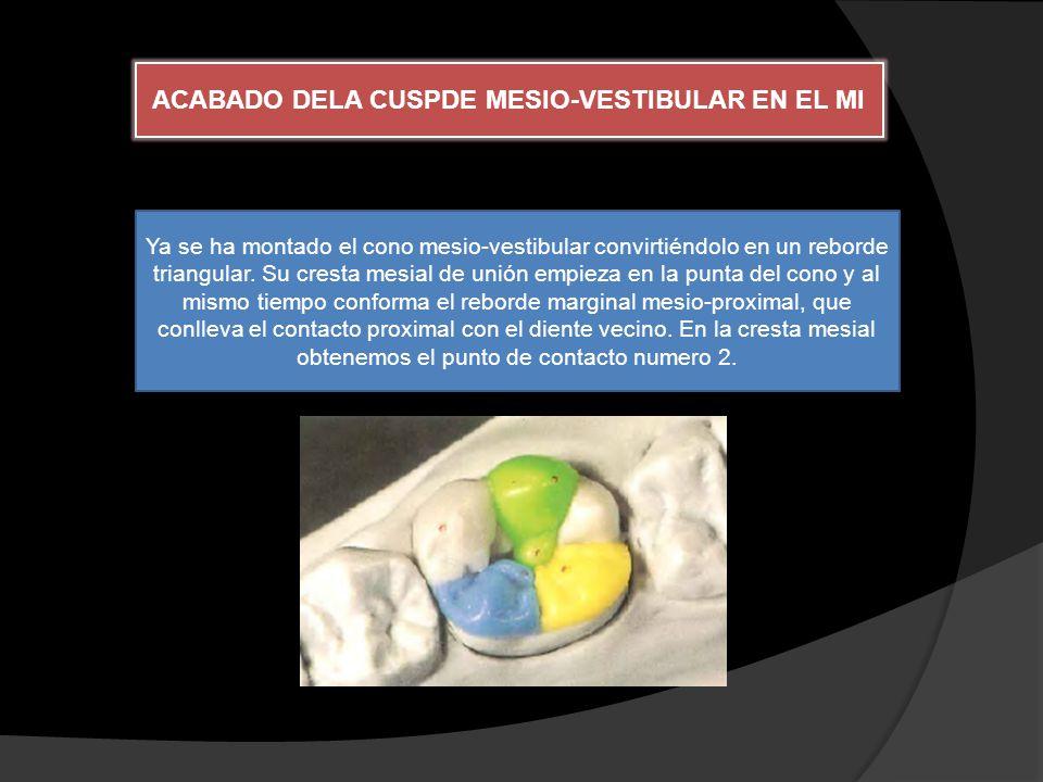 ACABADO DELA CUSPDE MESIO-VESTIBULAR EN EL MI