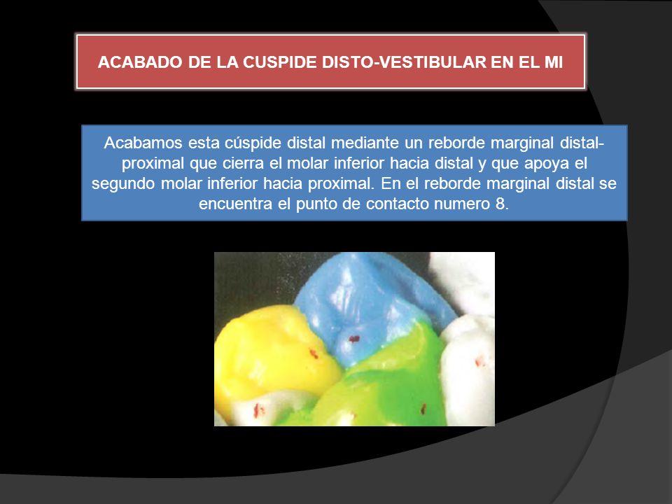 ACABADO DE LA CUSPIDE DISTO-VESTIBULAR EN EL MI