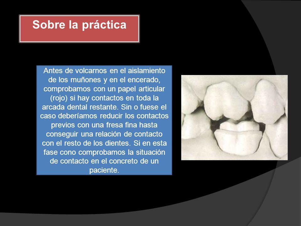 Sobre la práctica
