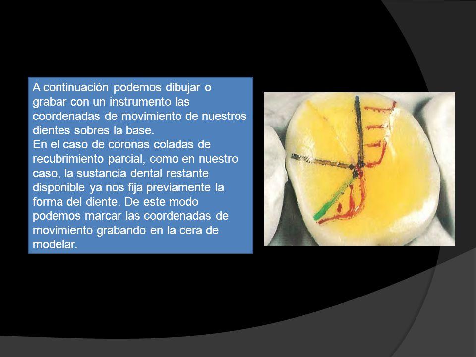 A continuación podemos dibujar o grabar con un instrumento las coordenadas de movimiento de nuestros dientes sobres la base.