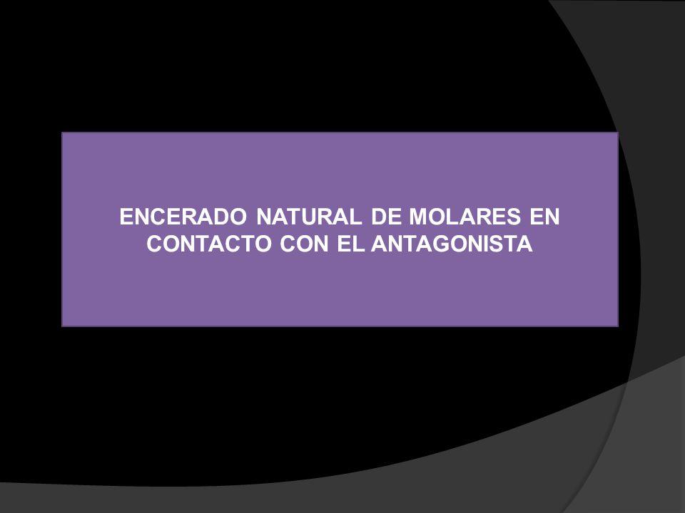 ENCERADO NATURAL DE MOLARES EN CONTACTO CON EL ANTAGONISTA