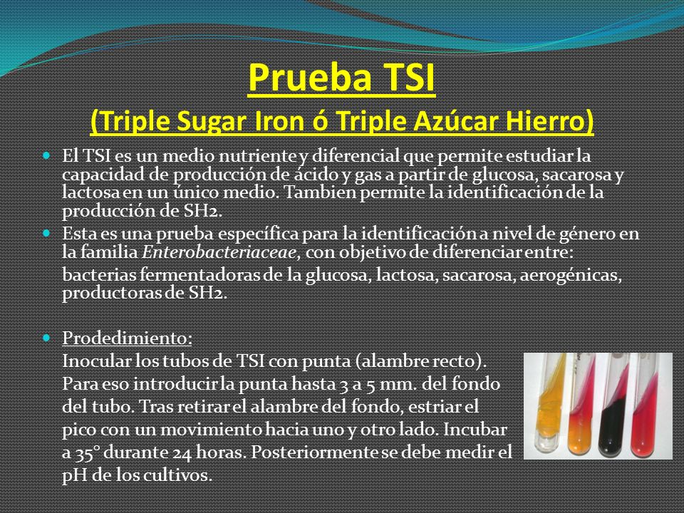 Prueba TSI (Triple Sugar Iron ó Triple Azúcar Hierro)
