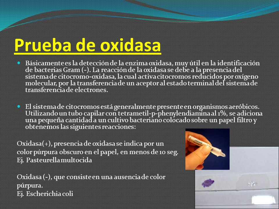 Prueba de oxidasa