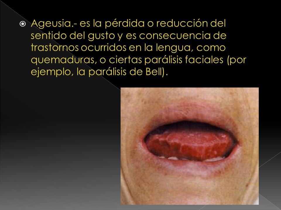 Ageusia.- es la pérdida o reducción del sentido del gusto y es consecuencia de trastornos ocurridos en la lengua, como quemaduras, o ciertas parálisis faciales (por ejemplo, la parálisis de Bell).