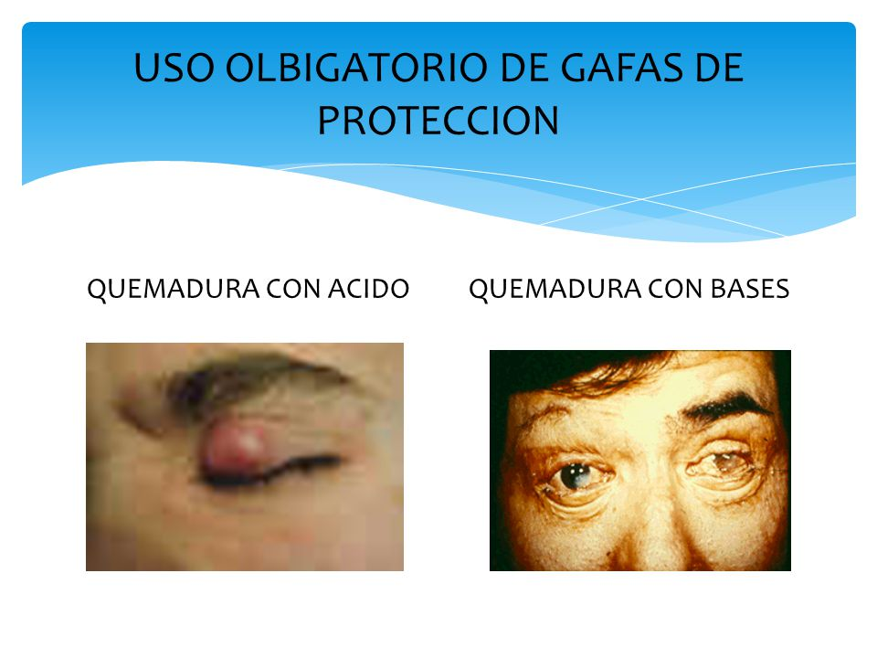 USO OLBIGATORIO DE GAFAS DE PROTECCION