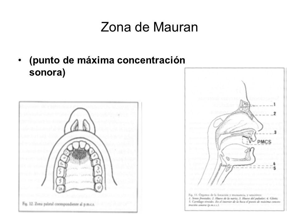 Zona de Mauran (punto de máxima concentración sonora)