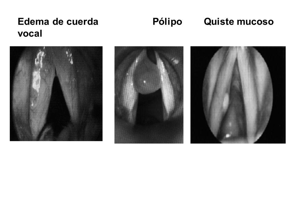 Edema de cuerda Pólipo Quiste mucoso vocal