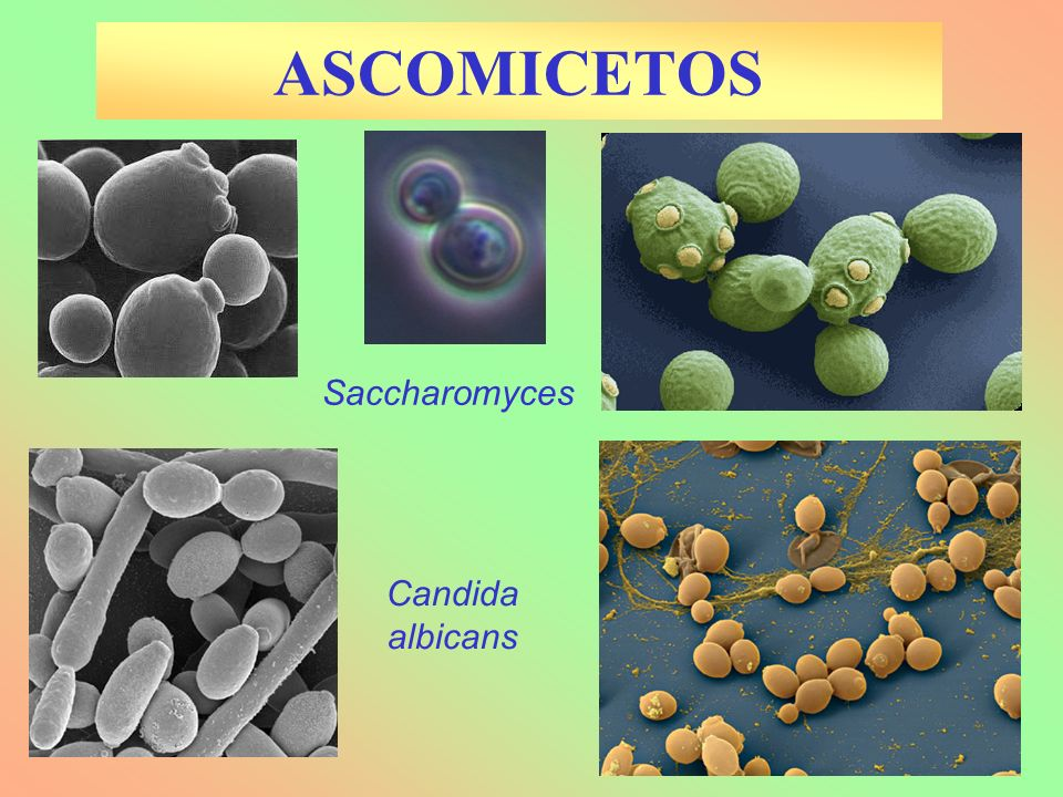 ASCOMICETOS Saccharomyces Candida albicans