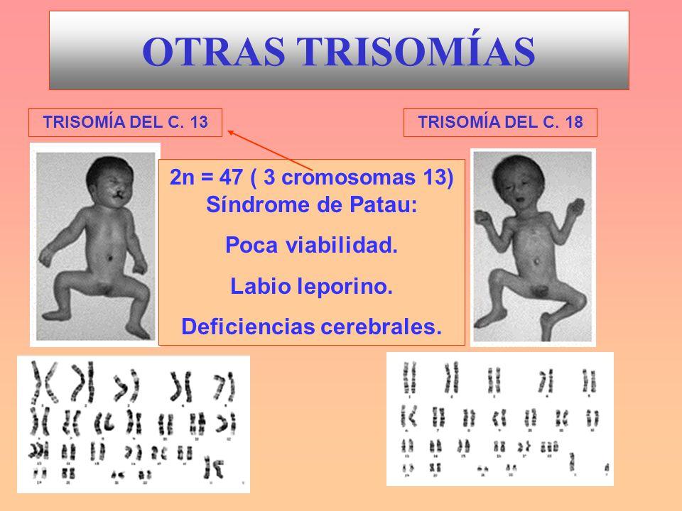 2n = 47 ( 3 cromosomas 13) Síndrome de Patau: Deficiencias cerebrales.