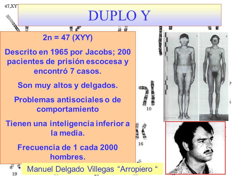 DUPLO Y 2n = 47 (XYY) Descrito en 1965 por Jacobs; 200 pacientes de prisión escocesa y encontró 7 casos.