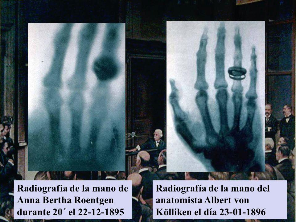 Radiografía de la mano de