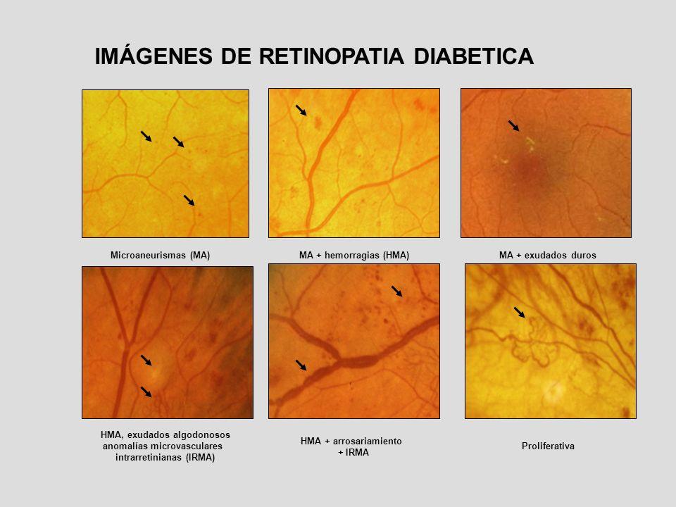 IMÁGENES DE RETINOPATIA DIABETICA