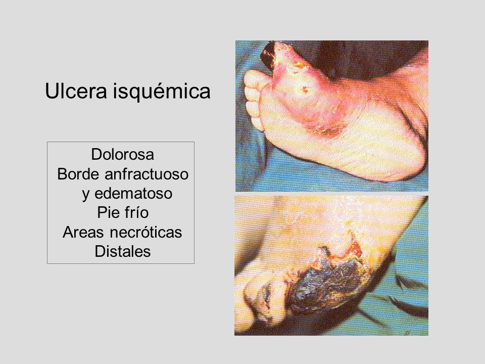 Ulcera isquémica Borde anfractuoso y edematoso Pie frío