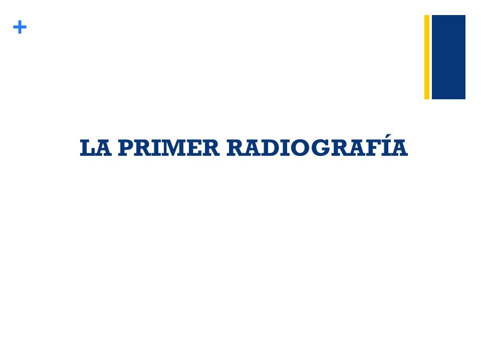 LA PRIMER RADIOGRAFÍA