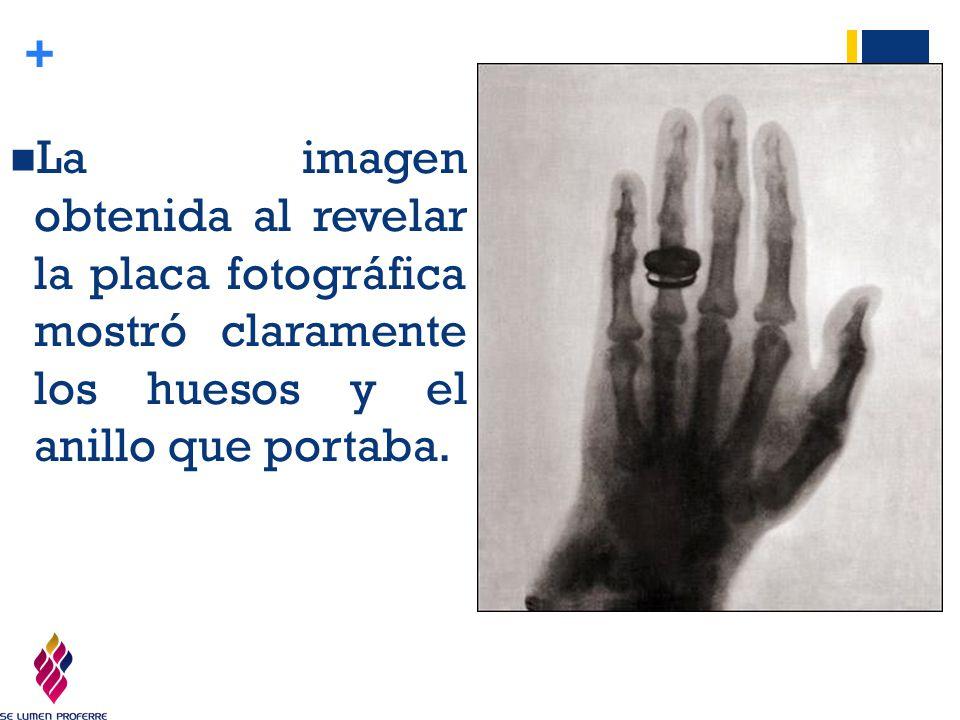La imagen obtenida al revelar la placa fotográfica mostró claramente los huesos y el anillo que portaba.