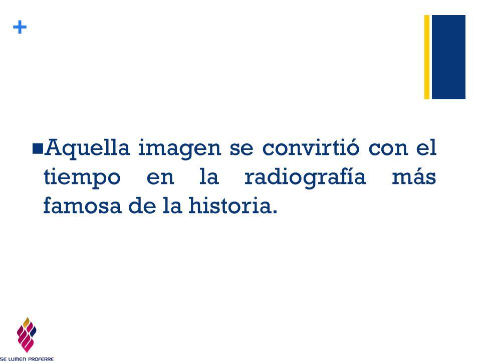 Aquella imagen se convirtió con el tiempo en la radiografía más famosa de la historia.