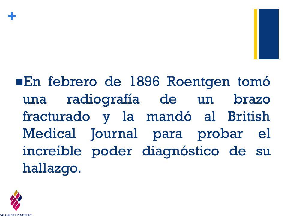 En febrero de 1896 Roentgen tomó una radiografía de un brazo fracturado y la mandó al British Medical Journal para probar el increíble poder diagnóstico de su hallazgo.
