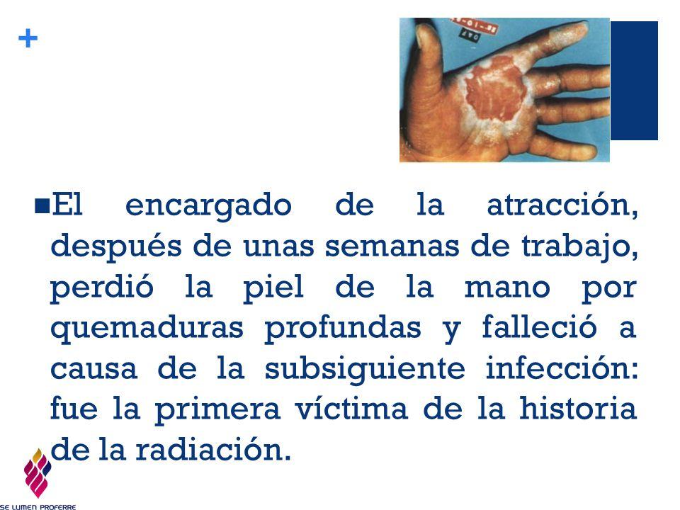 El encargado de la atracción, después de unas semanas de trabajo, perdió la piel de la mano por quemaduras profundas y falleció a causa de la subsiguiente infección: fue la primera víctima de la historia de la radiación.