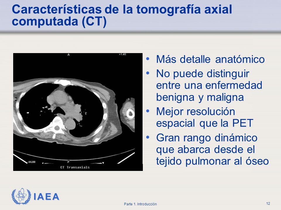 Características de la tomografía axial computada (CT)