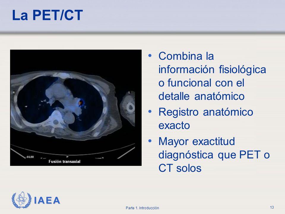 La PET/CT Combina la información fisiológica o funcional con el detalle anatómico. Registro anatómico exacto.