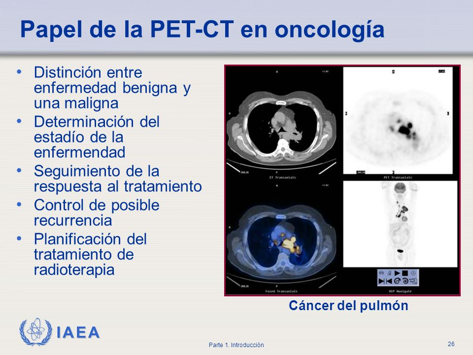 Papel de la PET-CT en oncología